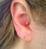 Penyebab Kenapa Ada Jerawat Tumbuh Di Telinga