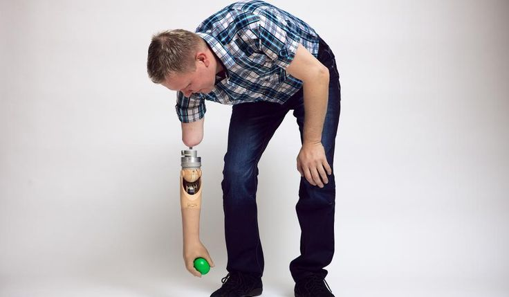 Brain-controlled prosthetic arm restores amputee's sense of touch