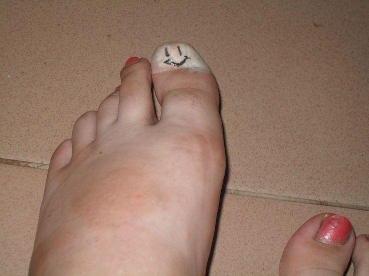 I cracked my toenail, so I have a bandage, but I made sure it was a happy one.