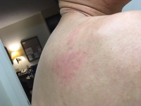 Chest Shower Rash After