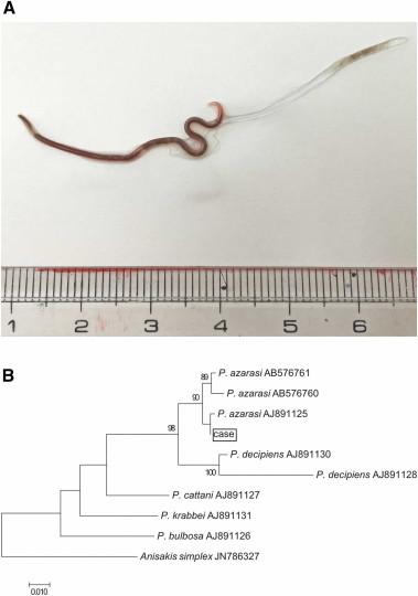 naom 5f0d7b64458ac - Mulher tem parasita com mais de 4 cm na amígdala após comer sashimi