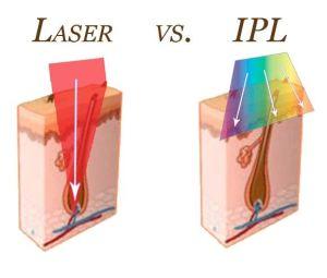 Skillnaden mellan laser och IPL
