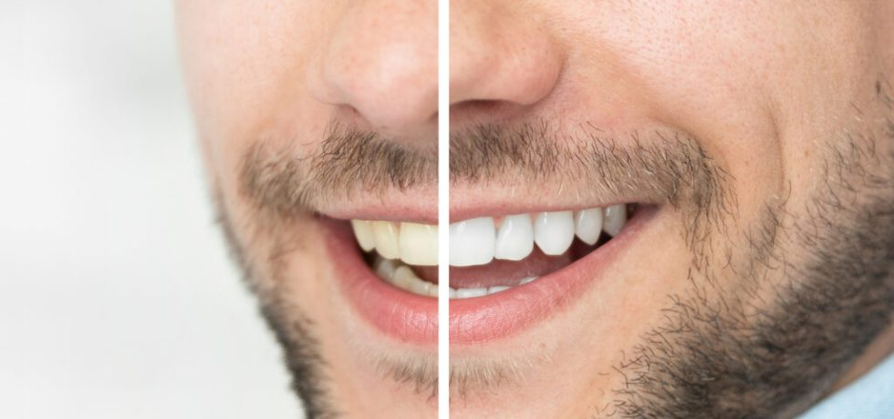 tips bleka tänderna hemma