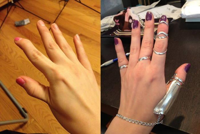 Silver Ring Splints: stylish custom jewelry/medical appliance for ...