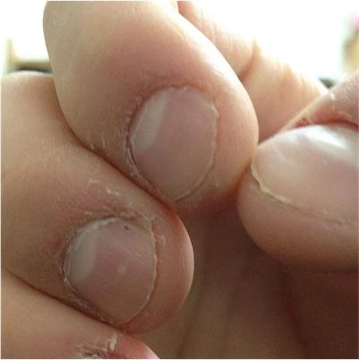 800px Nail and cuticle bitting