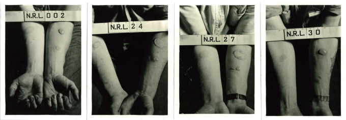 These historical photographs depict the forearms of human test subjects after being exposed to nitrogen mustard and lewisite agents in World War II experiments conducted at the Naval Research Laboratory in Washington, D.C. Courtesy of the Naval Research Laboratory