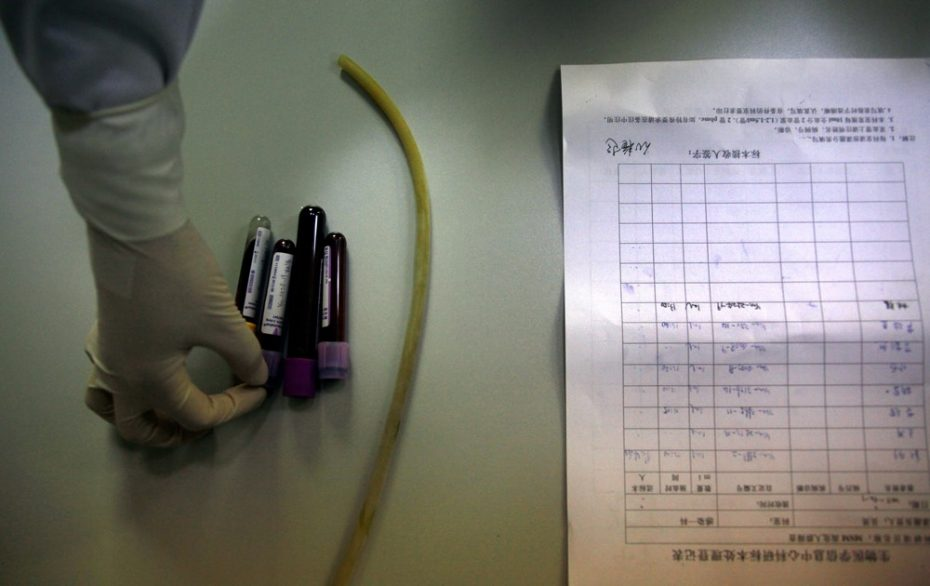 Blood samples are arranged for testing by a nurse in the HIV/AIDS ward of Beijing YouAn Hospital December 1, 2011.  REUTERS