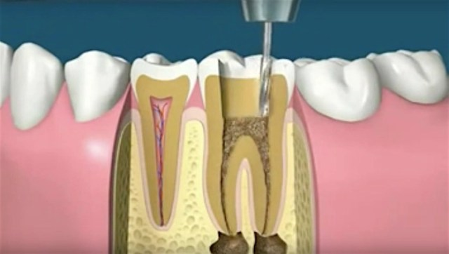 If you need a root canal, this explainer video might calm your (dead) nerves