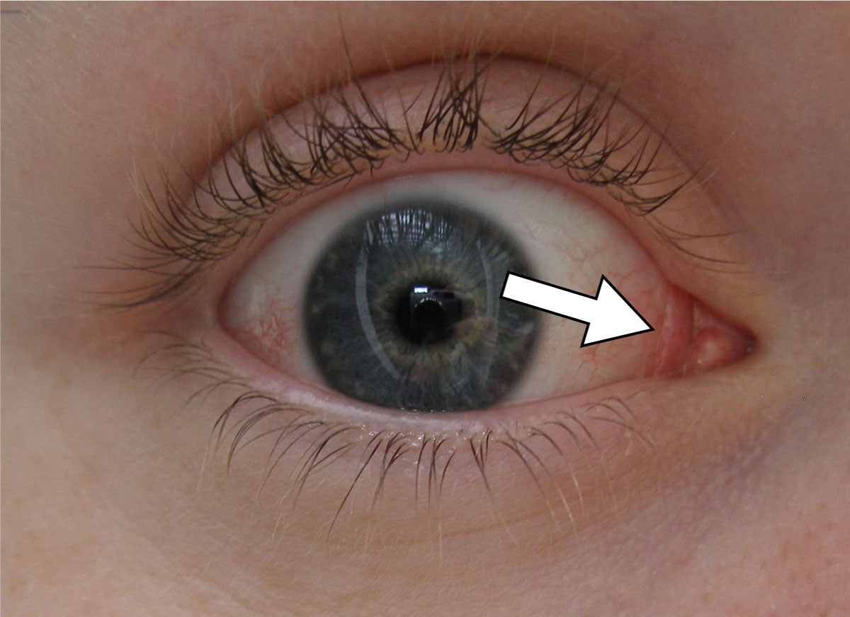 plica semilunaris swollen eye allergies - HD 1200×871