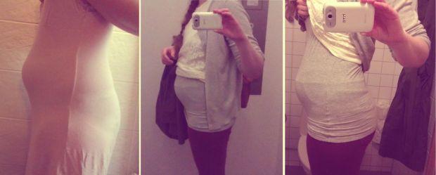uppsvälld mage av IBS