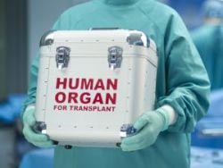 Human organ transplants in the Cayman Islands