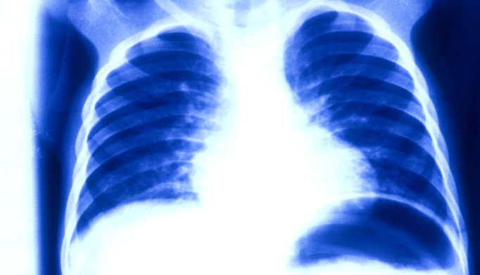 X Ray Lungs Asthma