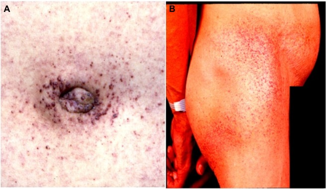 Area Skin Lesions Groin