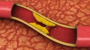 Un nivel elevado de LDL puede obstruir las arterias, creando placas o coágulos.