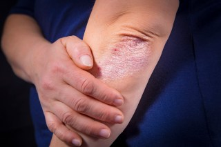 Results showed that HS prevalence was increased in patients with psoriasis when compared with the control participants.