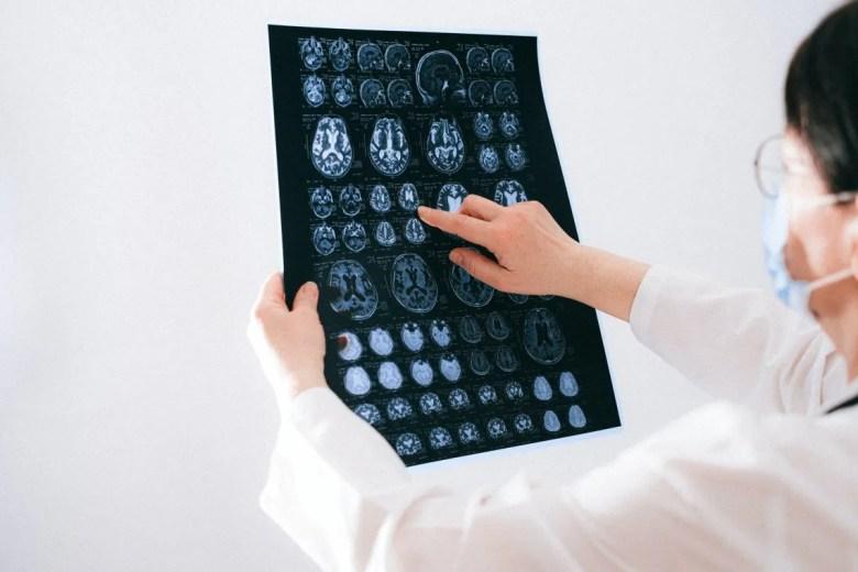 Cuidado del cerebro: la dieta, el sueño, la actividad social e intelectual son sólo algunas de las cosas a tener en cuenta