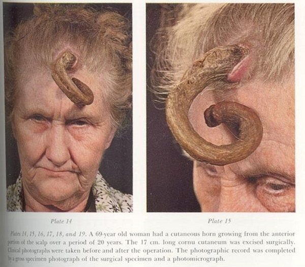 Horn lady