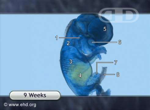 9-Week Fetus, MRI Animation [Click for next image]