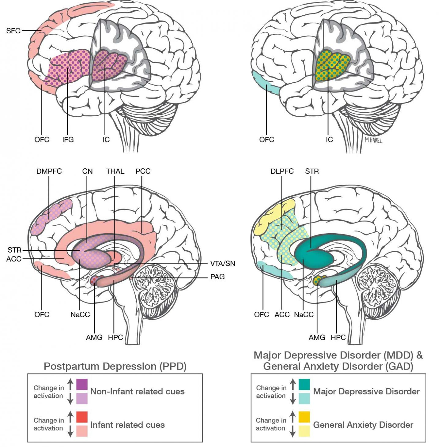 Postpartum Depression Amp Anxiety Distinct From Other Mood