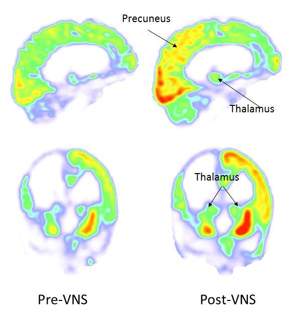 Imagens de FDG-PET de Fluorodeoxiglucose adquiridas durante a fase de dados de partida (à esquerda, pré-VNS) e 3 meses após estimulação do nervo vago (à direita, pós-VNS). Após a estimulação do nervo vago, o metabolismo aumentou no córtex parieto-occipital direito, tálamo e estriado. Crédito: Corazzol et al.