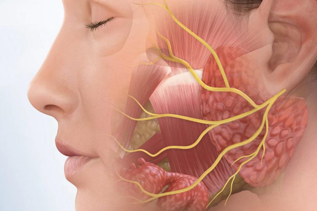متى يستدعي شلل العصب الوجهي التدخل الجراحي الكونسلتو