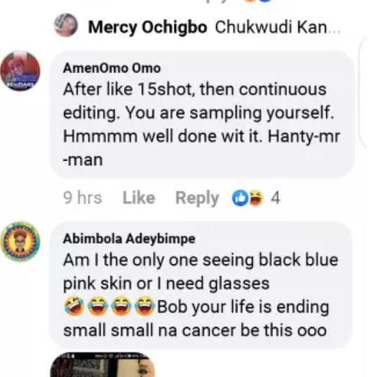 facebook - The Repercussions Of Bleaching – SEE Bobrisky's Recent Photo That Suggests He Is Suffering From Skin Cancer Skin-cancer4