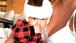 Chrissy Teigen reveals son's corrective helmet meant to fix his head