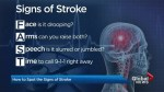 Women are 1/3 more likely to die of stroke than men, study finds