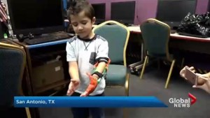 How an army of volunteers are 3D printing prosthetics for kids