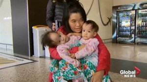 Complex surgery planned to separate conjoined twins in Australia