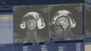 Provincial auditor finds private MRIs aren't reducing wait times