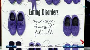 Breaking down some of the stigmas and myths around eating disorders