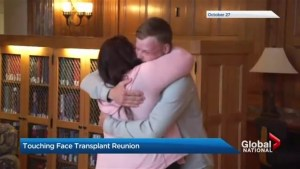 Minnesota woman meets transplant recipient who received deceased husband's face