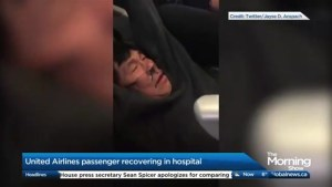 Is there any legal recourse for the United passenger dragged off his flight?