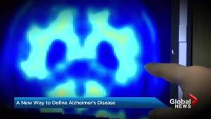New way of defining Alzheimer's could help find disease earlier