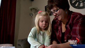 U of S scientists believe they have discovered cure for food allergies