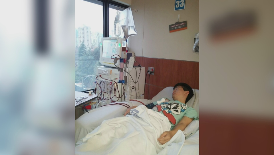 SFU student could lose $750K life-saving drug if his kidneys don't improve