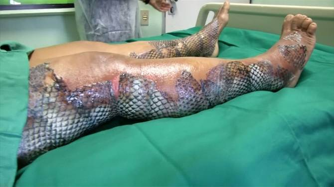 Brazilian doctors use fish skin to treat burn victims for Is tilapia a fake fish