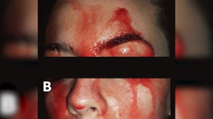 Woman who sweats blood a medical mystery: doctors