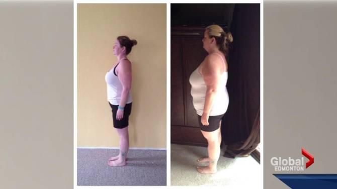 Aez tidore weight loss won