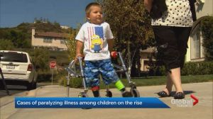 Polio-like disease afflicting children in high numbers in Canada, U.S.
