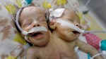Yemen-born conjoined twins won't survive without treatment abroad