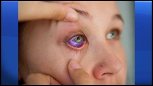 Peterborough doctor leading charge to ban eyeball tattoos