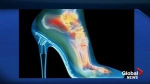 Podiatrist explains the dangers of high heels