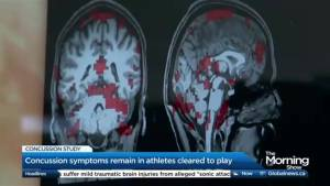 Are athletes who suffer concussions being cleared too soon?