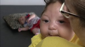 Zika virus may also be linked to eye abnormalities: health officials