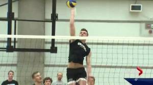 Alberta volleyball player aims to beat the odds after tumour removal