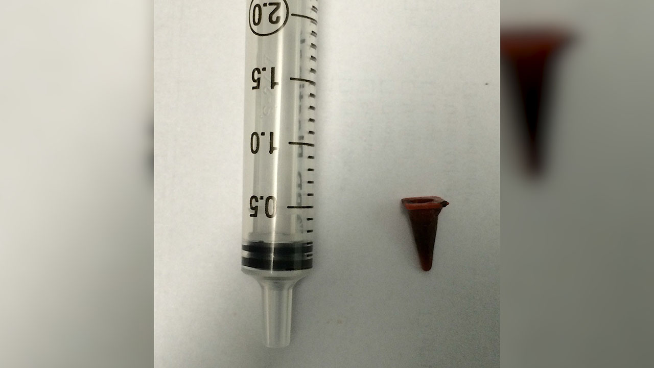Man's 'tumor' turns out to be toy he swallowed 40 years ago