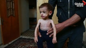 Syrian family begs for help amid worsening malnutrition crisis in eastern Damascus
