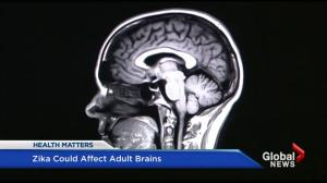 Zika virus could effect adult brains